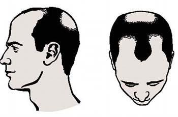 Простатит и выпадение волос || Простатит и выпадение волос